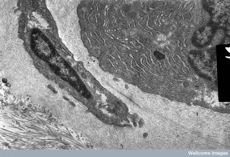 B0001760 Fibroblasts with organelles - TEM