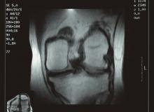 rodilla artroscan